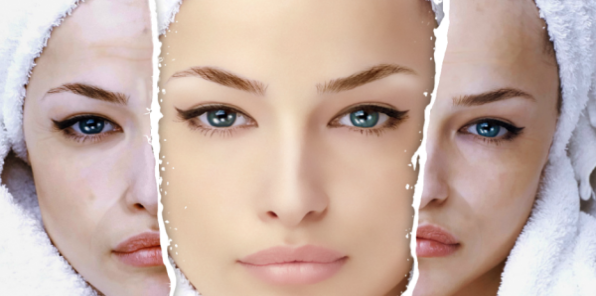-70% на косметологию в клинике MEDIDERM