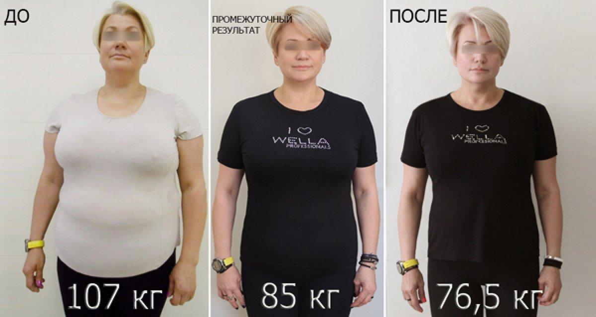 До 50% на коррекцию фигуры и веса в клинике «АИДА»