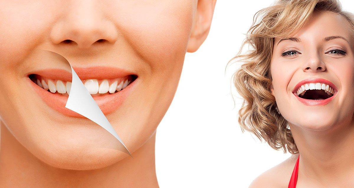 отбеливание зубов якутск