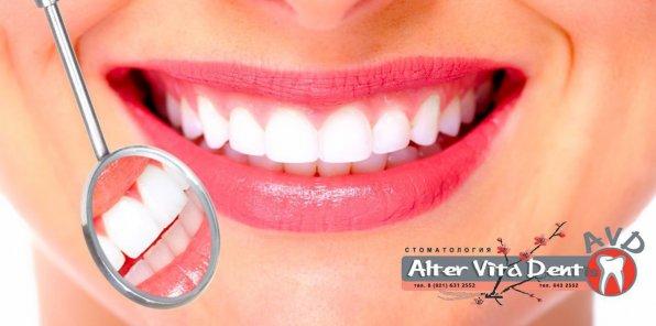 -79% от стоматологии Alter Vita Dentis