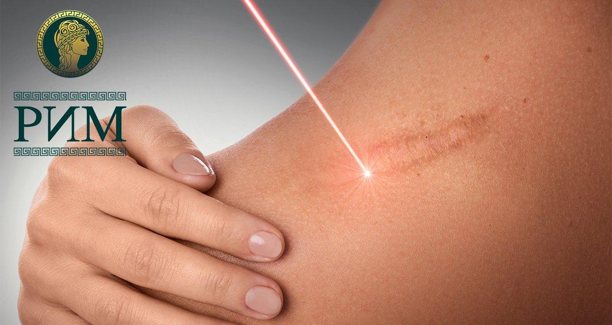 До -90% на лазерное удаление новообразований