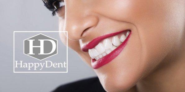 Скидки до 90% в стоматологии «Хэппи Дент»