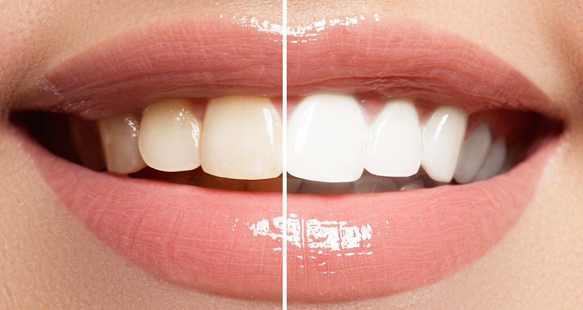 отбеливание зубов уфа отзывы