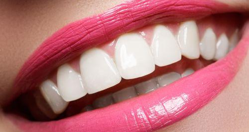 Скидки до 60% на косметическое отбеливание зубов