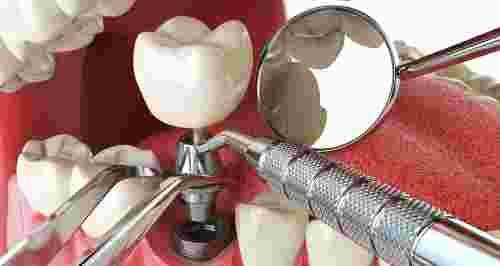 Скидки до 60% на имплантацию зубов