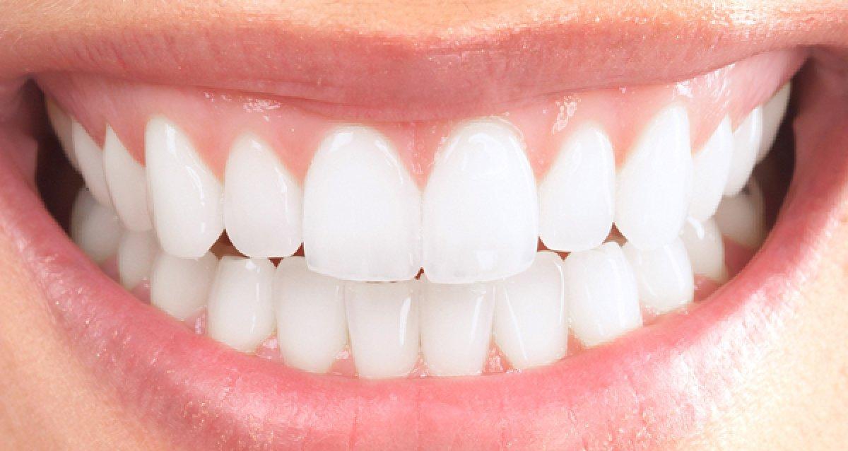 """Скидка 60% на брекеты Damon Clear и лечение кариеса от стоматологической клиники """"ЭСТЭЛИ"""""""