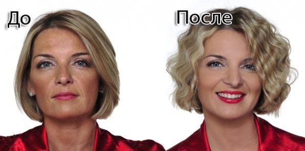 RF-подтяжка лица и тела на уникальном аппарате для фракционного радиолифтинга. Скидка 30% на лифтинг лица, шеи, зоны декольте