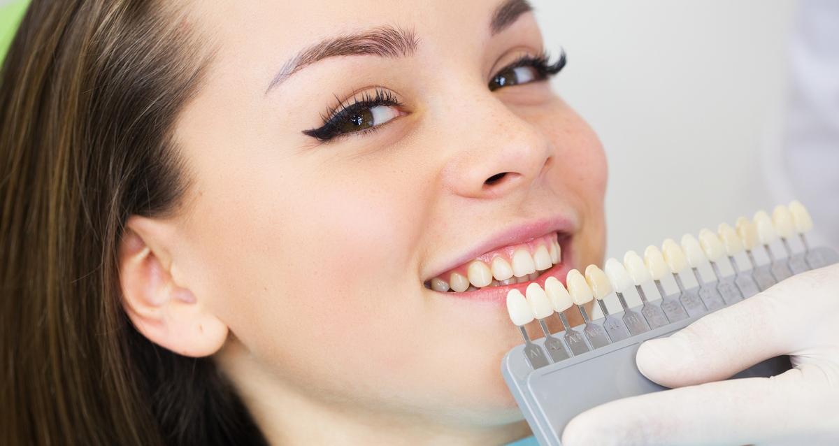 купон на отбеливание зубов спб