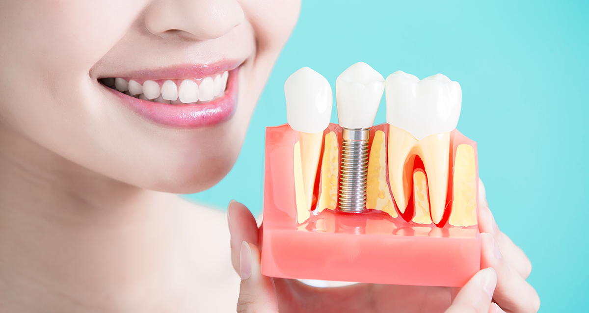 имплант зубной